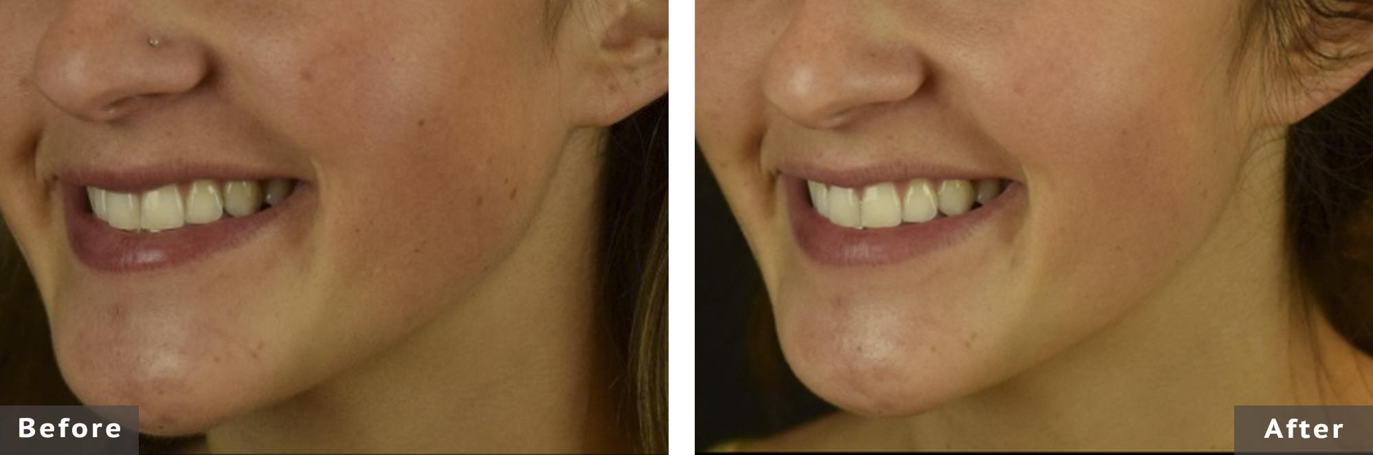 l'acné à 21 ans prix