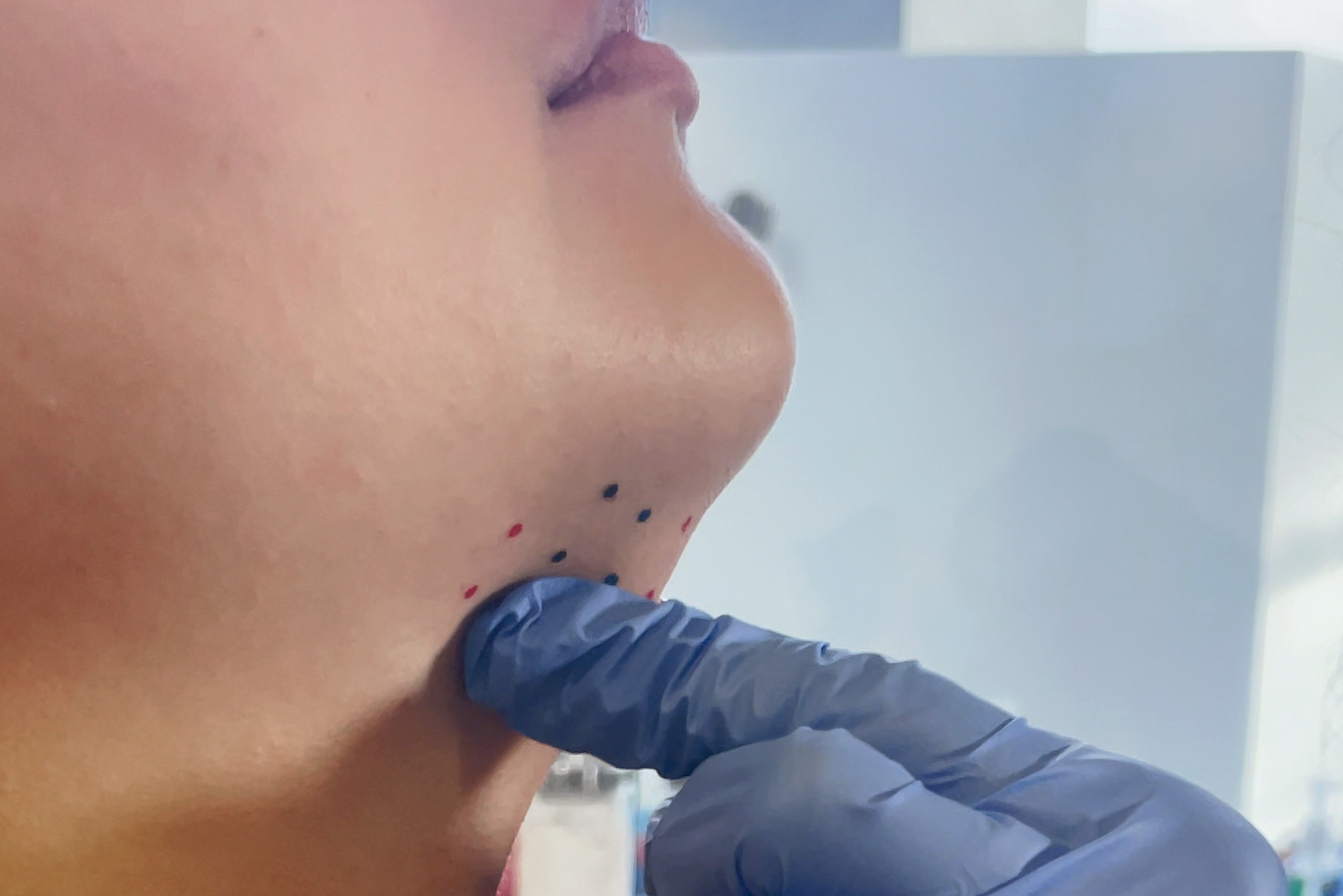 Kybella Injection Mapping