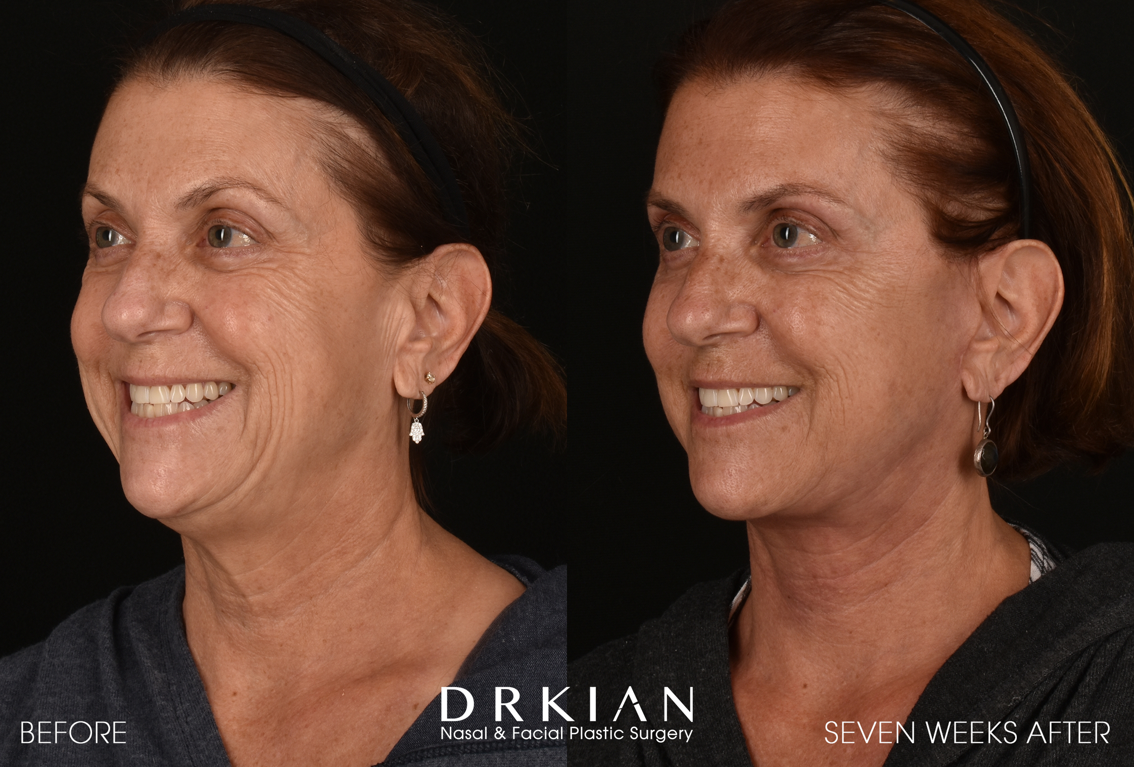 Face Lift Results at 7 Weeks