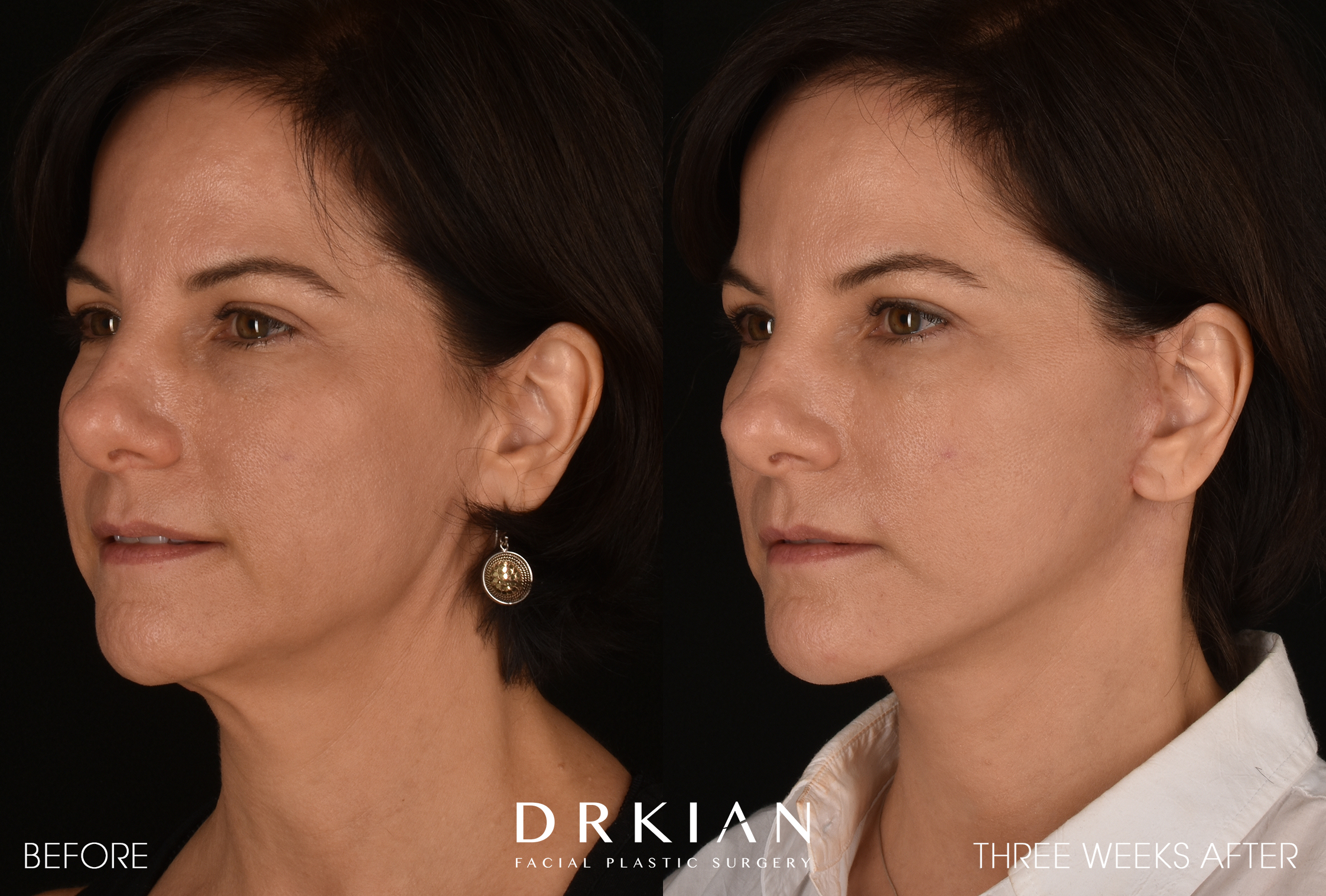 Micro Neck Lift Results at 3 weeks