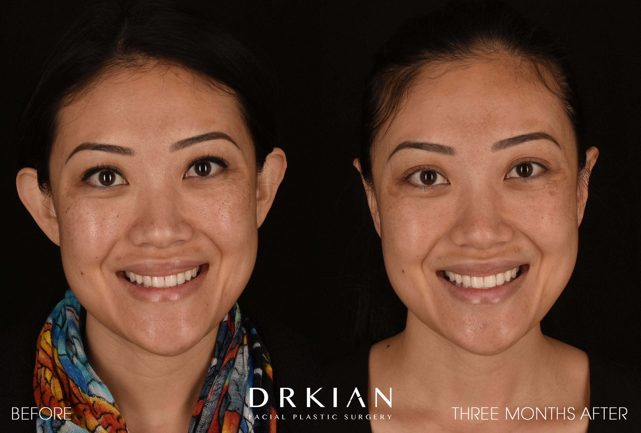 Otoplasty Before & After 3 Months