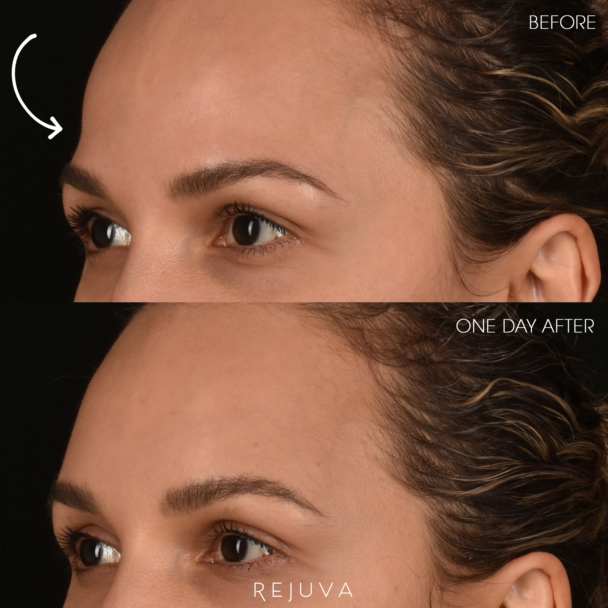 Temple Filler - Before and After