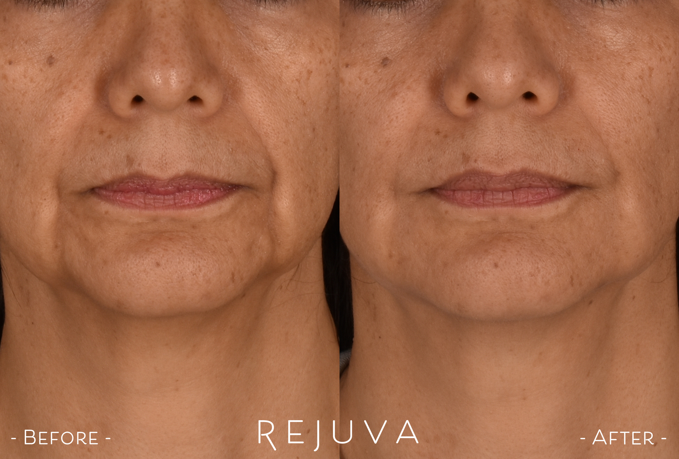 Revanesse Versa for Smile Lines