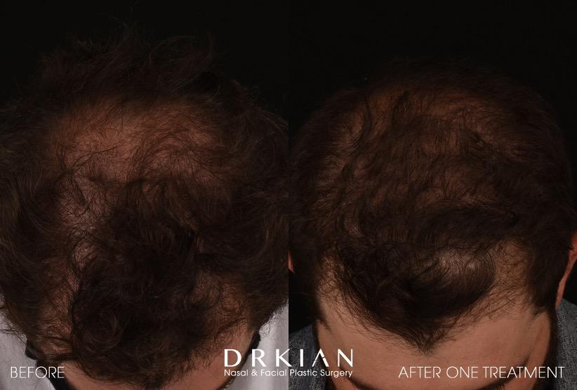 Hair Restoration - PRF