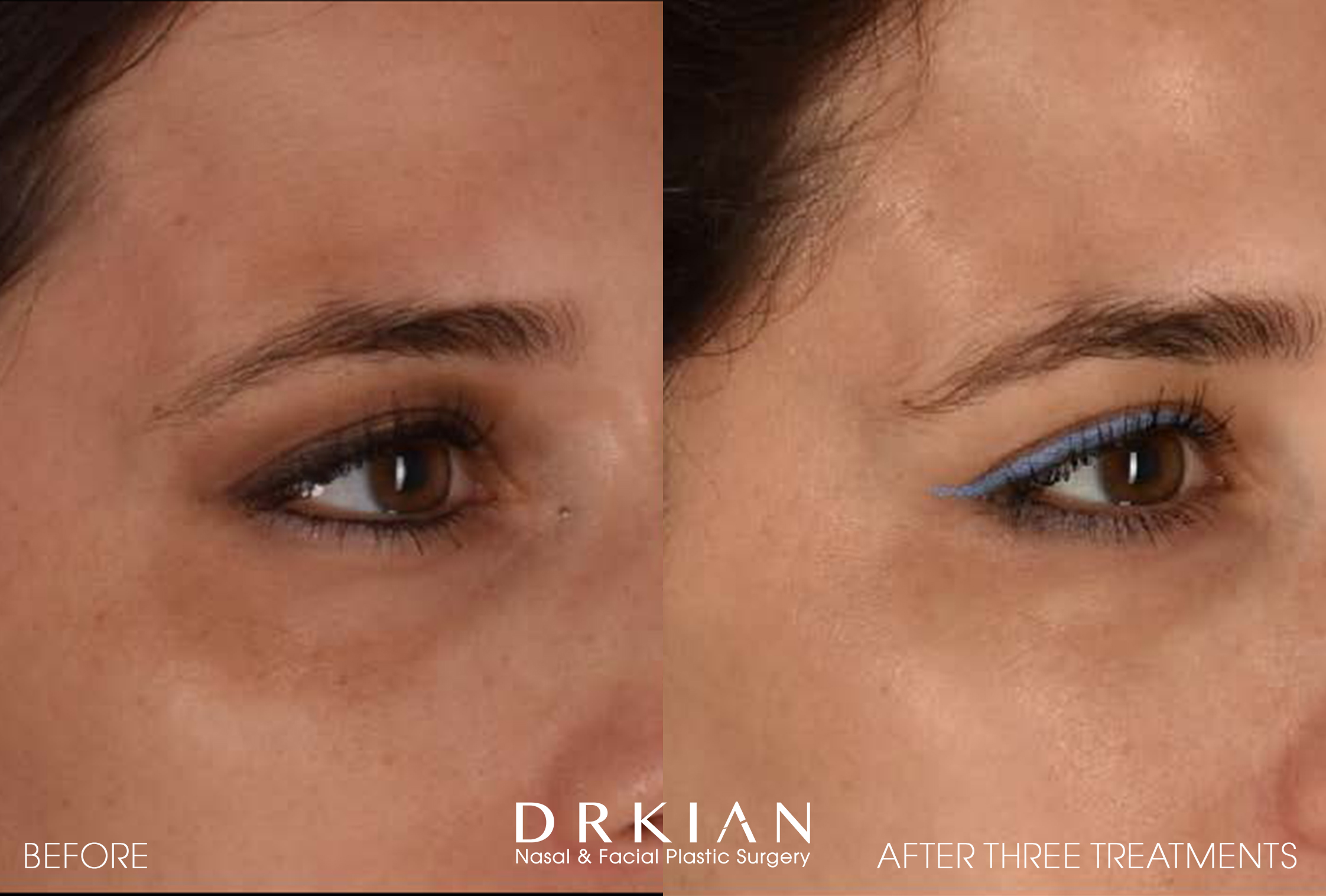 PicoSure Before & After
